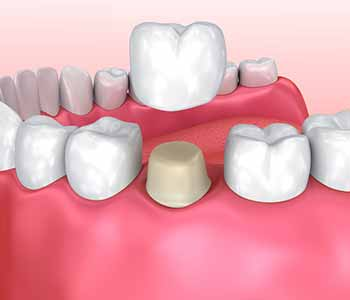 Crowns explained - Restorative inlays, onlays and crowns services in Phoenix AZ