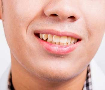 Dental bonding treatment offered in Phoenix transforms damaged, misshaped, or discolored teeth