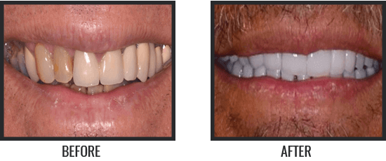 Patient's Before & After Image 1 small