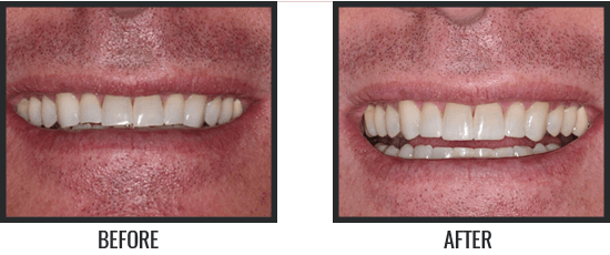 Patient's Before & After Image 10 small