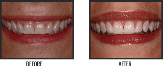 Patient's Before & After Image 2 small