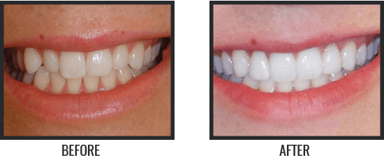 Patient's Before & After Image 3 small