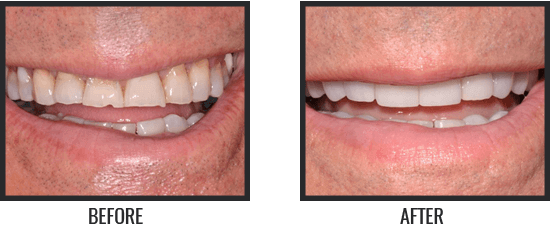 Patient's Before & After Image 4 small