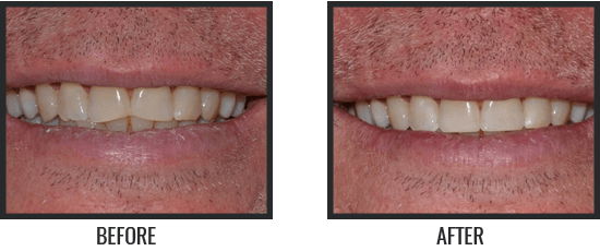Patient's Before & After Image 8 small