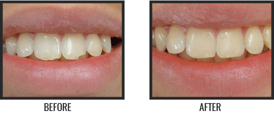 Patient's Before & After Image 9 small