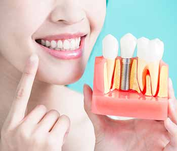 Quality tooth replacement for a healthy smile