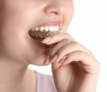 Dr. Rashmi Bhatnagar straightens teeth with Invisalign, a clear alternative to braces in Phoenix AZ.